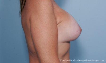 Philadelphia Breast Lift and Augmentation 9438 -  After Image 3