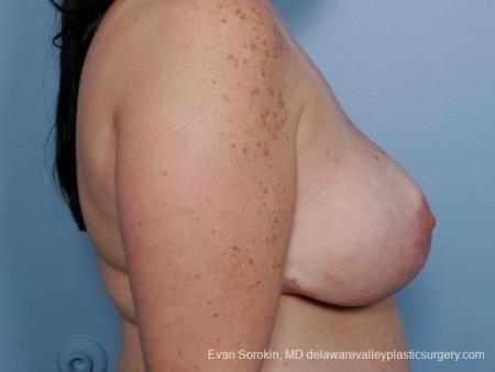 Philadelphia Breast Reduction 8703 -  After Image 5