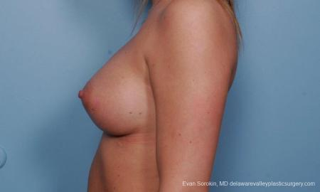 Philadelphia Breast Augmentation 9379 -  After Image 4