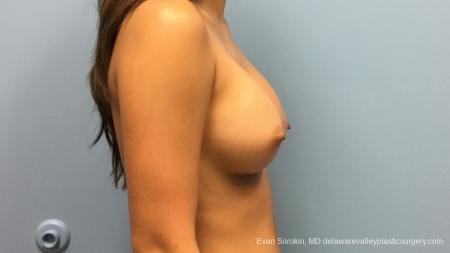 Philadelphia Breast Augmentation 13183 -  After Image 3