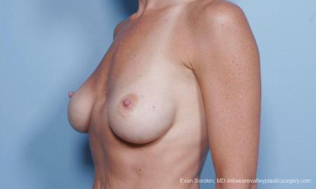 Philadelphia Breast Augmentation 9454 - Before Image 4
