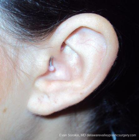 Philadelphia Earlobe Surgery 9384 -  After Image 2