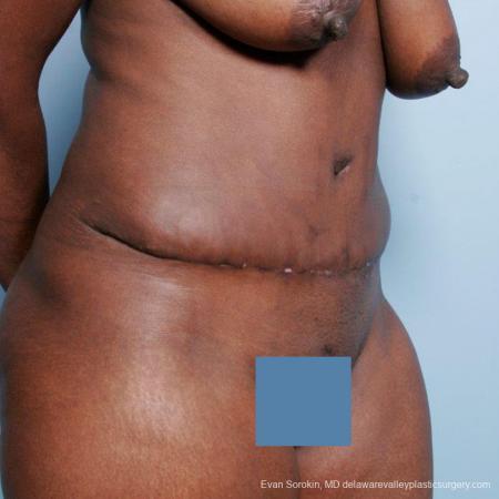 Philadelphia Abdominoplasty 9477 -  After Image 2