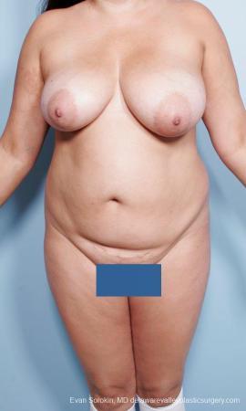 Philadelphia Mommy Makeover 9442 - Before Image 1