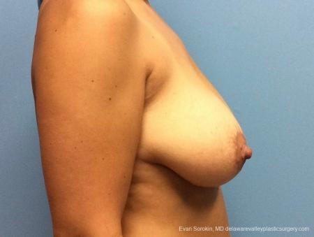 Philadelphia Breast Lift and Augmentation 13070 - Before Image 3