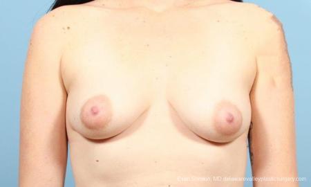 Philadelphia Breast Augmentation 9346 - Before Image 1