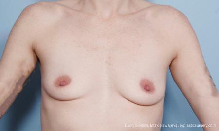 Philadelphia Breast Augmentation 8649 - Before Image