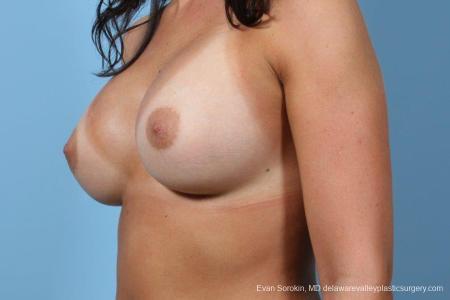 Philadelphia Breast Augmentation 8643 -  After Image 4