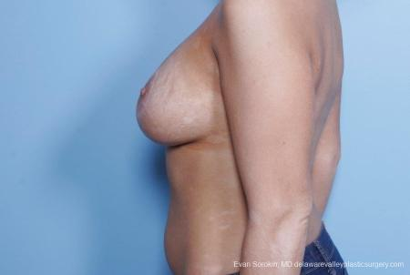 Philadelphia Breast Lift and Augmentation 8688 -  After Image 5