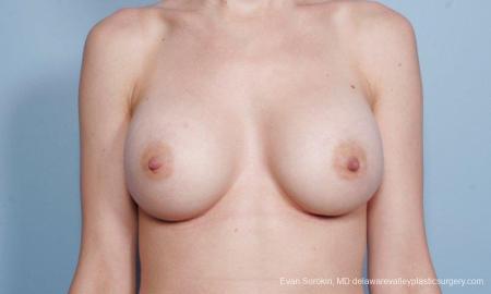 Philadelphia Breast Augmentation 9170 -  After Image 1
