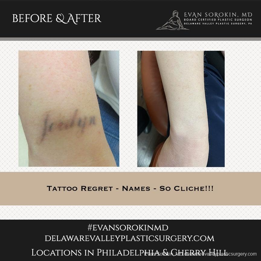Tattoo Removal: Patient 7 - Before and After Image 1