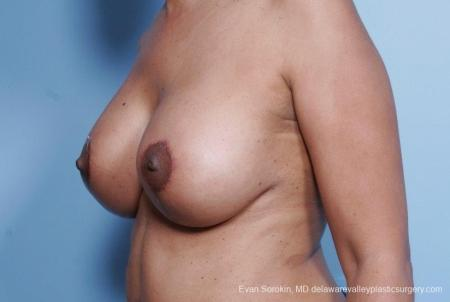 Philadelphia Breast Lift and Augmentation 8692 -  After Image 3