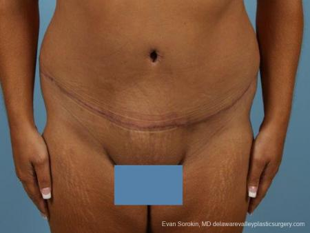 Philadelphia Abdominoplasty 9471 -  After Image 1