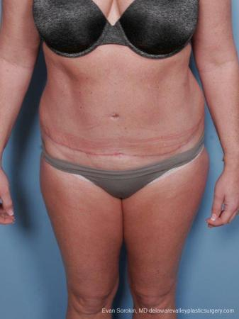 Philadelphia Abdominoplasty 9463 -  After Image 1