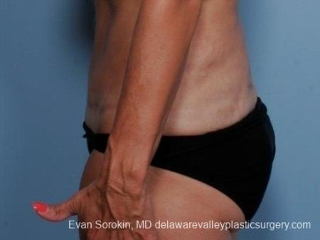 Philadelphia Abdominoplasty 8682 -  After Image 5