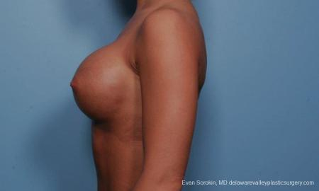 Philadelphia Breast Augmentation 9299 -  After Image 3
