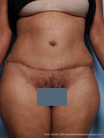 Philadelphia Abdominoplasty 9461 -  After Image 1