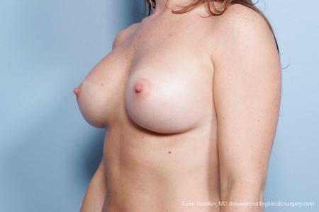 Philadelphia Breast Augmentation 8785 -  After Image 3