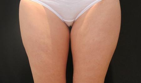 CoolSculpting®: Patient 8 - Before Image