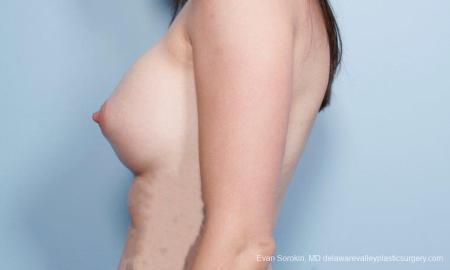 Philadelphia Breast Augmentation 9175 -  After Image 5