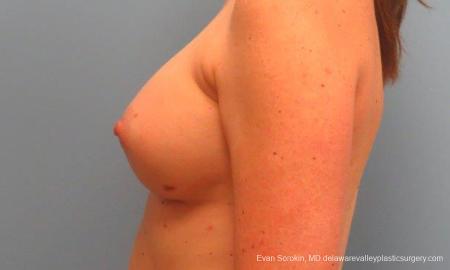 Philadelphia Breast Augmentation 9180 -  After Image 5