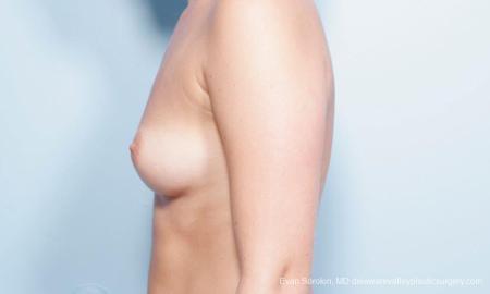 Philadelphia Breast Augmentation 9303 - Before Image 3