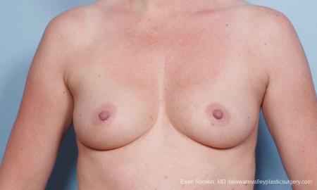 Philadelphia Breast Augmentation 9178 - Before Image 1
