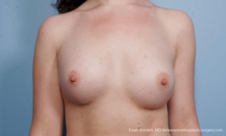 Philadelphia Breast Augmentation 9176 -  After Image 1