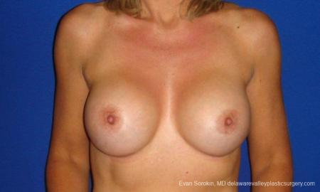 Philadelphia Breast Augmentation 9412 -  After Image 1