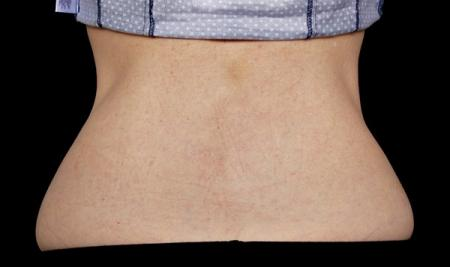 CoolSculpting®: Patient 11 - After Image 1