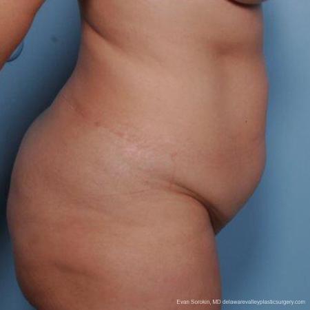 Philadelphia Liposuction 9481 - Before Image 3
