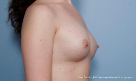Philadelphia Breast Augmentation 9176 -  After Image 2