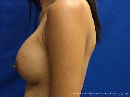 Philadelphia Breast Augmentation 13071 -  After Image 4