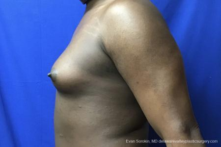 Top Surgery - Male To Female: Patient 2 - Before and After Image 3