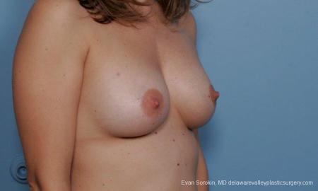 Philadelphia Breast Augmentation 9360 -  After Image 2