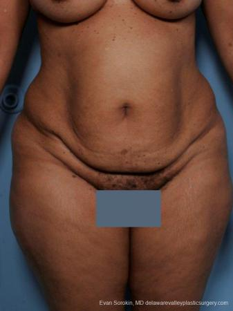 Philadelphia Abdominoplasty 9461 - Before Image 1