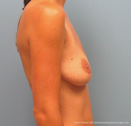 Philadelphia Breast Augmentation 13067 - Before Image 3