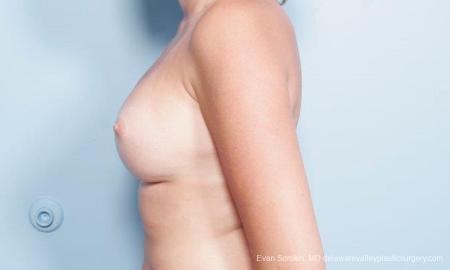 Philadelphia Breast Augmentation 9301 -  After Image 5
