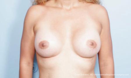 Philadelphia Breast Augmentation 9347 -  After Image 1