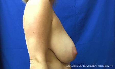 Philadelphia Breast Reduction 12512 - Before Image 4