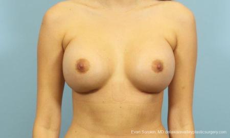 Philadelphia Breast Augmentation 9195 -  After Image 1