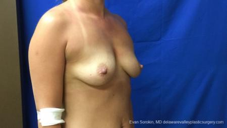 Philadelphia Breast Augmentation 13173 - Before Image 2