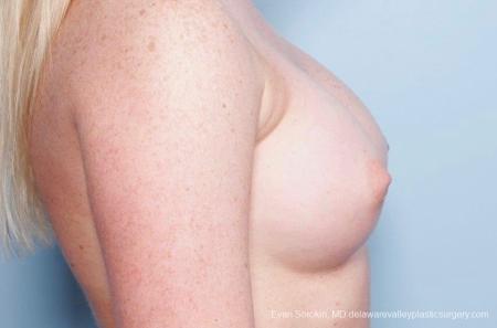 Philadelphia Breast Augmentation 8778 -  After Image 4