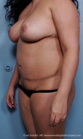 Philadelphia Mommy Makeover 9442 -  After Image 4