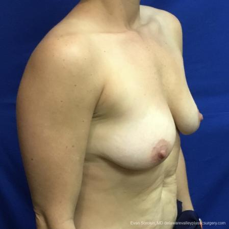 Breast Lift And Augmentation: Patient 3 - Before Image 2