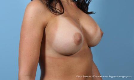 Philadelphia Breast Augmentation 8643 -  After Image 2