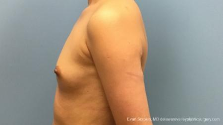 Philadelphia Breast Augmentation 13172 - Before and After Image 5