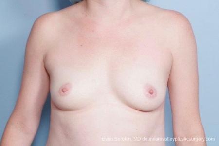 Philadelphia Breast Augmentation 8795 - Before Image 1