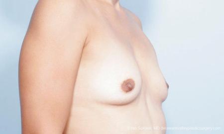 Philadelphia Breast Augmentation 9347 - Before Image 2