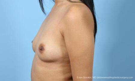 Philadelphia Breast Augmentation 9298 - Before and After Image 5